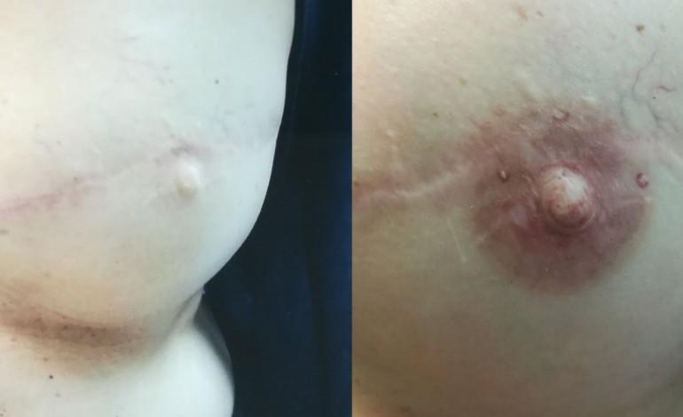 dermopigmentacao-melhora-auto-estima-de-vitimas-de-cancro-9851